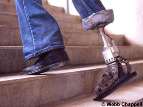 robotic prosthetics article