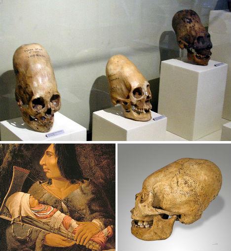 Human Bones Elongated Skulls