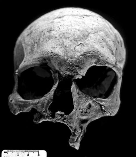 Human Bones First Leper