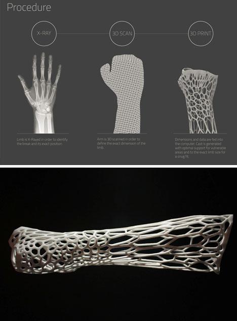 custom cast design process