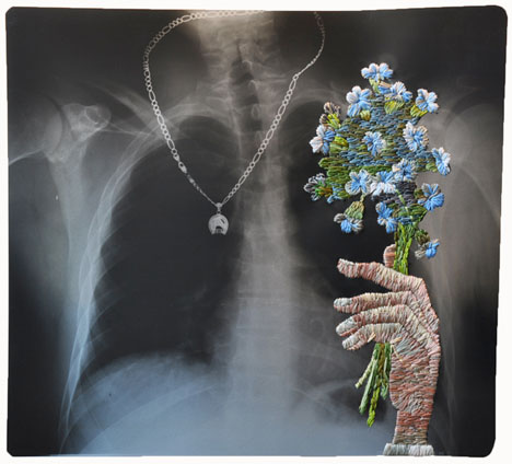 Embroidered Art X-Rays 2