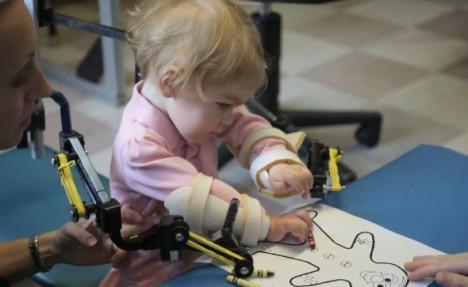 3D Printed Disabilities Exoskeleton