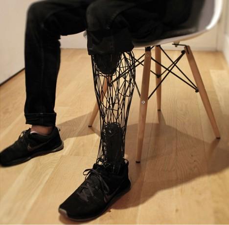 3d custom titanium prosthesis