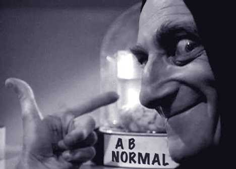 marty-feldman-AB-normal-brain
